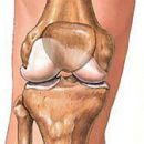 the causes and mechanism of development of osteoarthritis