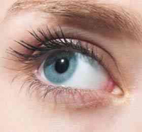 if you have Sjogren's syndrome