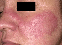 Scleroderma symptoms diagnosis and treatment
