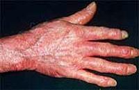 Mi a szisztémás sclerodermia