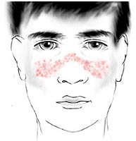 systemic lupus erythematosus there is to know about it