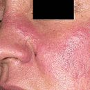 What is systemic lupus erythematosus
