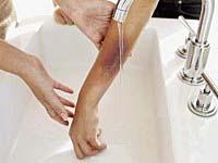 effectively treat bruises