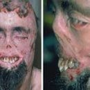 porphyria scientifically proved vampirism