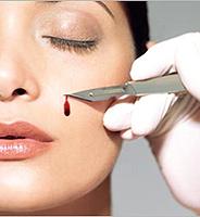 Козметична и пластична хирургия: Каква е разликата?