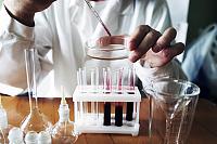 Allgemeine Blutanalyse