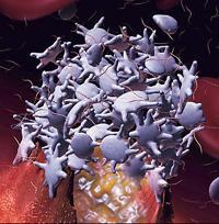 what thrombocytopenia