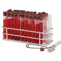 A hemolitikus anémia tünetei és kezelése
