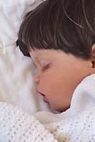 forms of hemolytic disease of the newborn