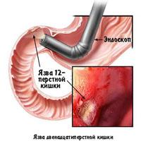 Amyloidose des Magen-Darm-Trakts