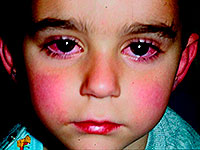 Kawasaki syndrome is the cause of sudden death in children
