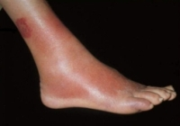 erysipelas legs