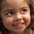 hypervitaminosis symptoms in children