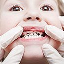 types of superficial and deep caries tooth decay in children