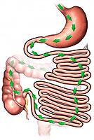 Darmverschluss: Symptome bei Kindern