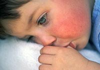 How is scarlet fever