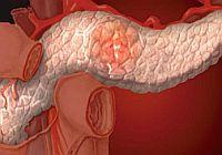 exacerbation of chronic pancreatitis