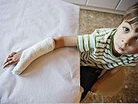 Vaikų lūžis: reabilitacija ir priežiūra