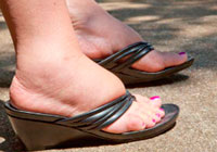varicose veins angioedema or heart problems how to distinguish
