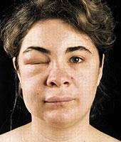 Как изглеждат хранителните алергии