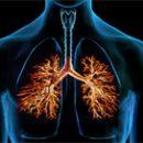 Chronical bronchitis