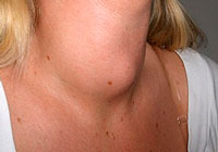 Basnedova disease