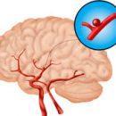 familiar stranger cerebral aneurysms