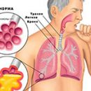 diet in diseases of the lungs meals with pneumonia