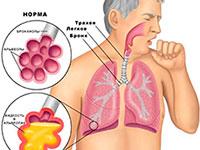 Диети при белодробни заболявания: хранене при пневмония