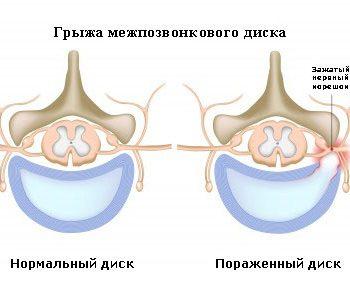 intervertebral hernia
