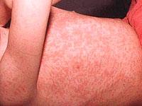 Болест на рубеола: какво знаете за нея