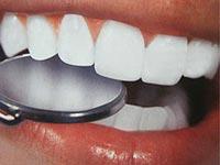 طب الأسنان: إزالة المنزل غير فعال؟