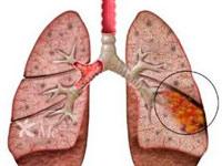 Pathogenese, Entzündung und Komplikationen von Lungenabszess