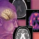 etiology of dementia overall systematization