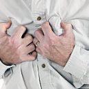 signs of myocardial infarction