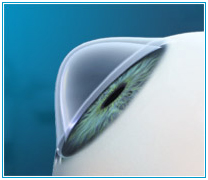 keratoplasty treatment of pathologies of the cornea