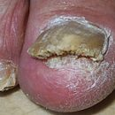 surgical and hardware treatment of nail fungus