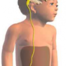 treatment of hydrocephalus in children