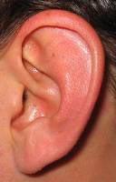 congenital malformations of ear