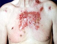 manifestations of vulgar pemphigus