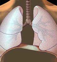 A tüdőrák kezelésére szolgáló módszerek