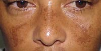 chloasma are talking about your symptoms