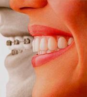 كيف تهتم بالأقواس في الفم