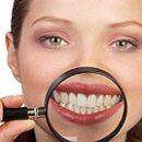 Hollywood Smile Teeth Whitening