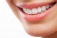 Cómo blanquear tus dientes