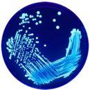 Legionella inside the body