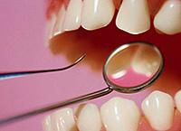 types of periodontitis