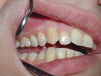 What is periodontal