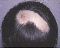Alopecia areata that do