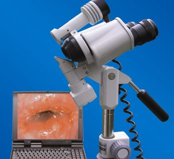 colposcopy with cervical erosion